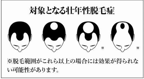 アンファーのメディカルミノキ5の増毛効果のイラスト