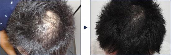フィナステリド錠1mgで頭頂部が改善された例!