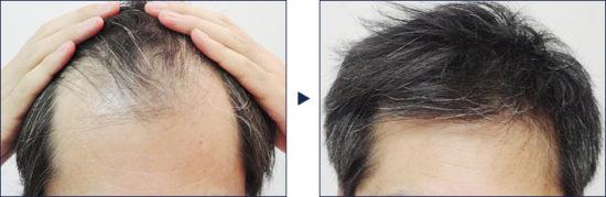 フィナステリド錠1mgで前頭部が1年かけて改善の例!