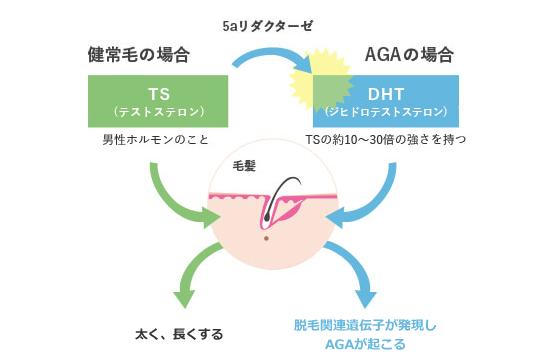 5αリダクターゼとジヒドロテストステロンのAGAの関係や仕組みの図