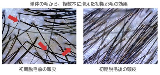 フィナステリド錠1mgとミノキシジルタブレットの初期脱毛について