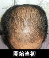 前頭部から禿げてたのでフィナステリドを服用