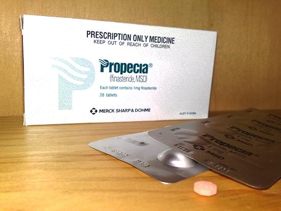 プロペシアジェネリックのフィナステリド錠1mgは薄毛改善の効果!