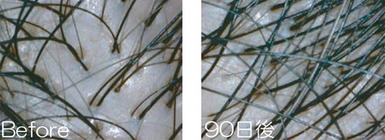 初期脱毛は一か所から3本生えてくるようになる前の段階