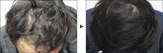 プロペシアとミノキシジルのセット治療で大幅改善!