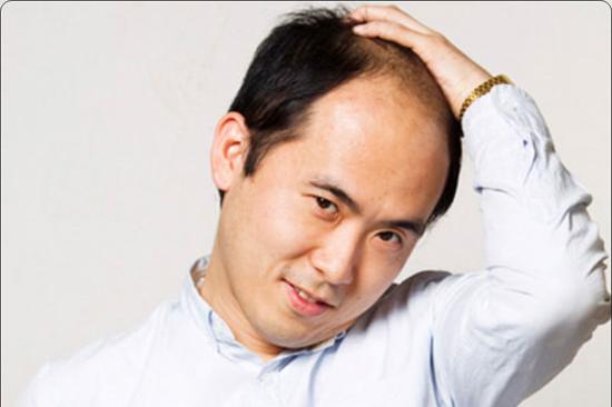 薄毛でも自信に満ち溢れているトレンディエンジェル斉藤さん!