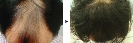 ミノタブ5%の内服薬を1年間服用したケース。視線が気にならないまでに!
