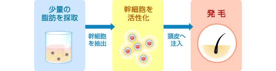 脂肪幹細胞を採取して、頭皮へ注入、幹細胞の活性化で発毛へ