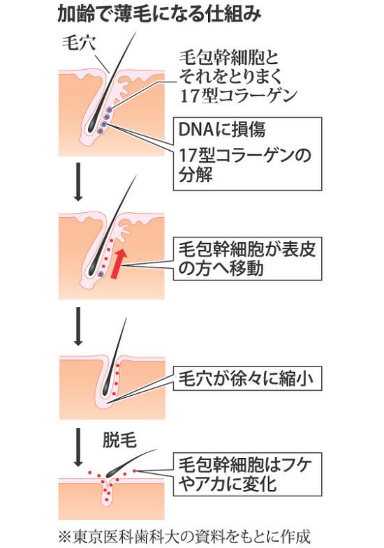 17型コラーゲンの減少でDNAを修復できず、毛包が矮小化してフケや垢に。