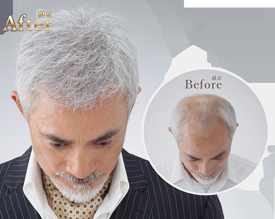 白髪の男性が頭頂部に増毛している様子