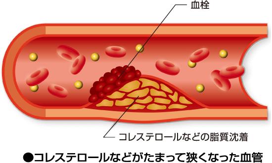 コレステロールなどの脂質沈着で血栓が出来た血管