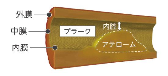 アテロームプラークの形成はマクロファージのゴミ蓄積